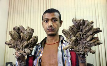 Photos: The Man Who Is Turning Into A Tree In Bangladesh