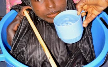 SAD PHOTOS:Teenager Who Lived In A Plastic Bowl Dies Age 20 On Christmas Day