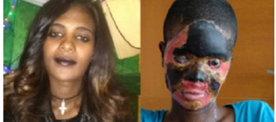 PHOTOS: This Lady's Mouth is Melted Together because her Husband Poured Acid on her
